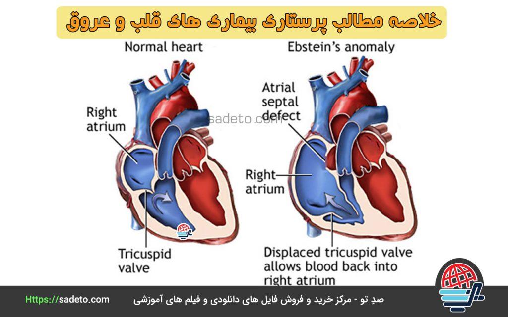 خلاصه مطالب پرستاری بیماری های قلب و عروق
